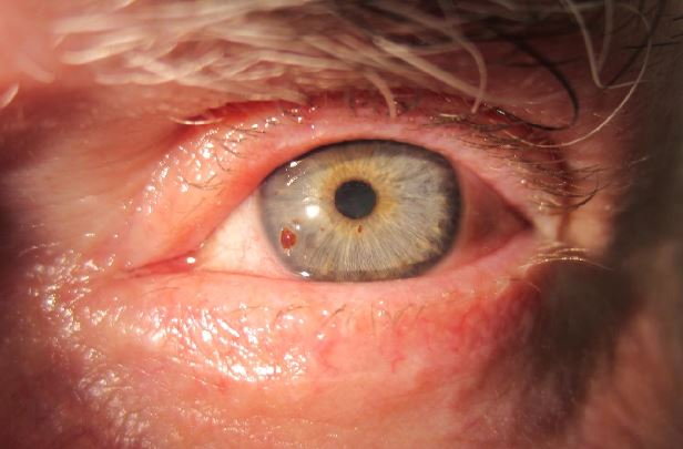 Foreign body on the cornea